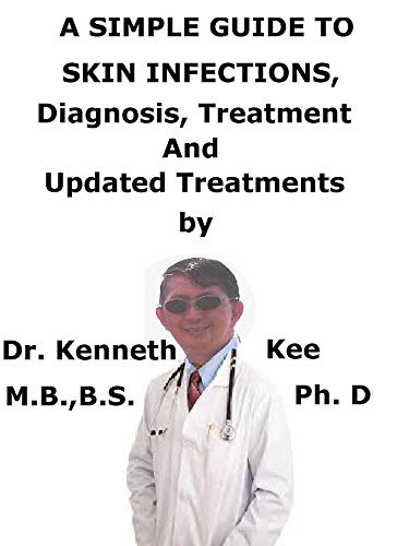 A  Simple  Guide  To  Skin Infections,  Diagnosis, Treatment  And  Related Conditions (English Edition)